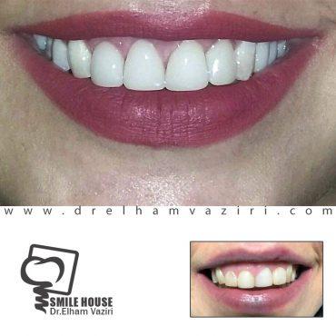 چهار واحد کامپوزیت دندان