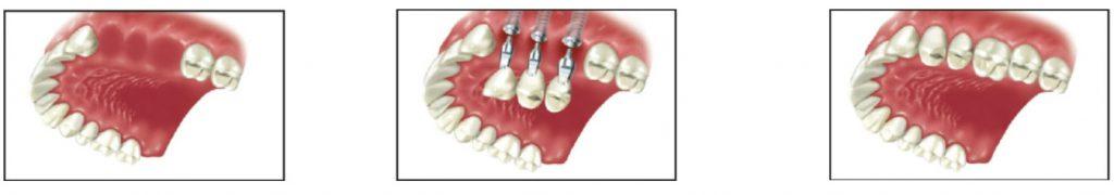 ایمپلنت دندان چند دندان