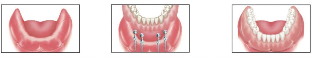 ایمپلنت کلیه دندان ها