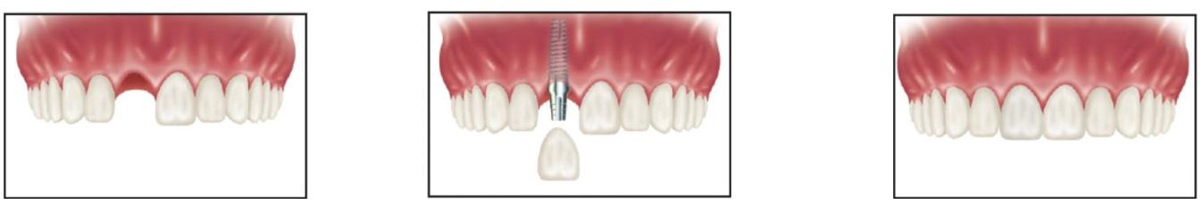 ایمپلنت دندان تک دندان