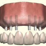 ایمپلنت جایگزین کل دندان ها