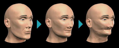 کاهش استخوان کل صورت