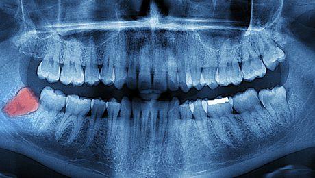 عکس اشعه ایکس دندان