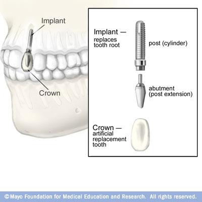 برنامه ریزی جهت درمان ایمپلنت دندان