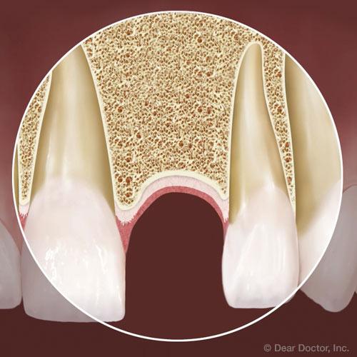 تحلیل استخوان بعد از بی دندانی