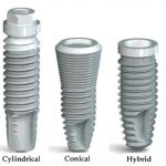 taper implants