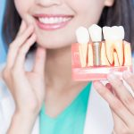 تاثیر سن بر ایمپلنت دندان