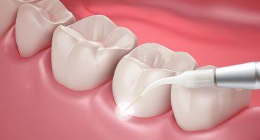 لیزر دندانپزشکی
