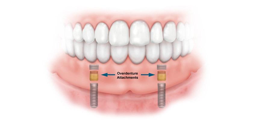 بهترین راه حل برای شل شدن دندان مصنوعی
