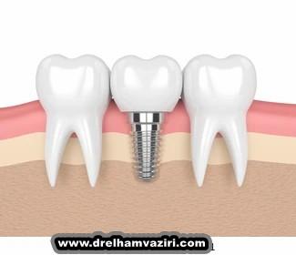 فواید ایمپلنت دندان در کلینیک دکتر الهام وزیری