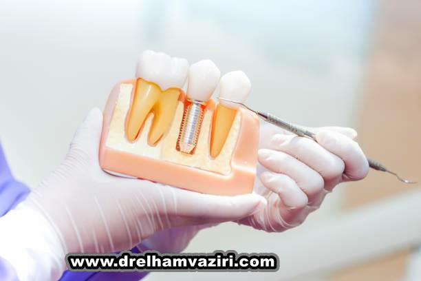موافقان و مخالفان ایمپلنت دندان