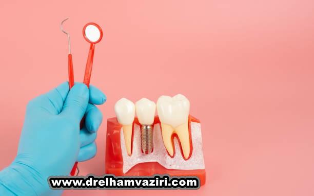 منشا ایمپلنت دندان از کجاست
