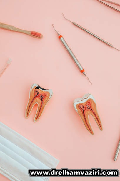 نوع ایمپلنت دندان