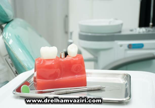 نشانه هایی است که شما به ایمپلنت دندان نیاز دارید