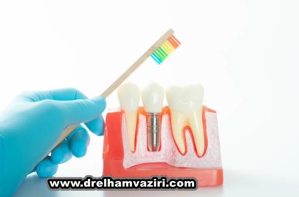 نحوه ایمپلنت دندان