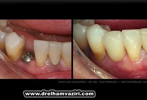 مواردی که باید در مورد ایمپلنت دندان بدانید