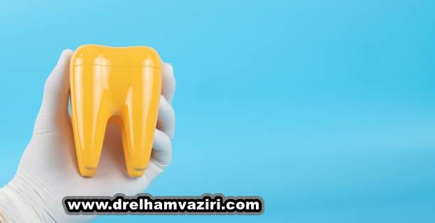 ماندگاری کاشت و ایمپلنت دندان