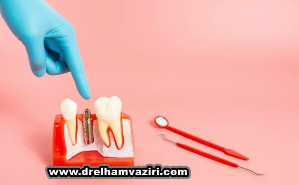 ایمپلنت دندان بهترین راه حل جایگزینی دندان