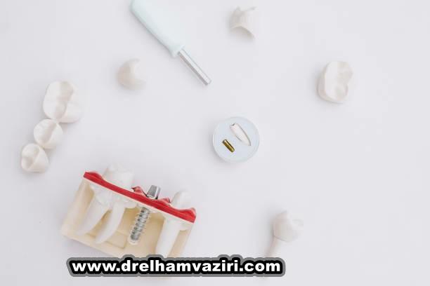 بهبودی از ایمپلنت دندان