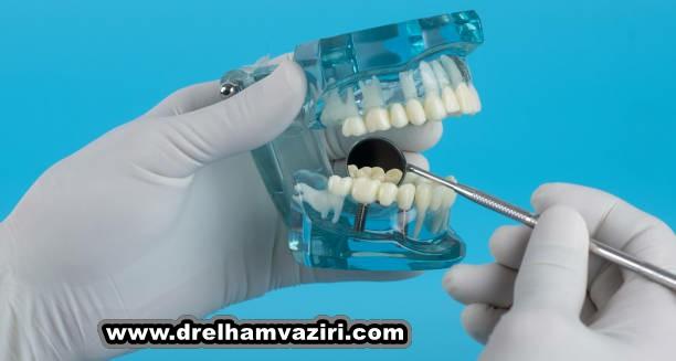 جایگزینی دندانهای از دست رفته با ایمپلنت های دندانی