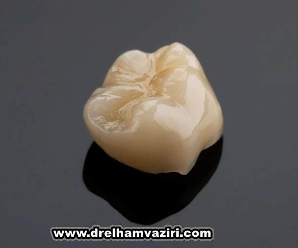 ایمپلنت دندان می تواند لبخند شما را برگرداند