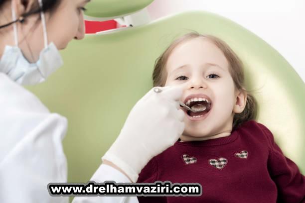 ایمپلنت دندان بعد از افتادن دندان