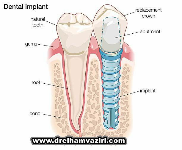 کاشت و ایمپلنت دندان در کلینیک دکتر وزیری