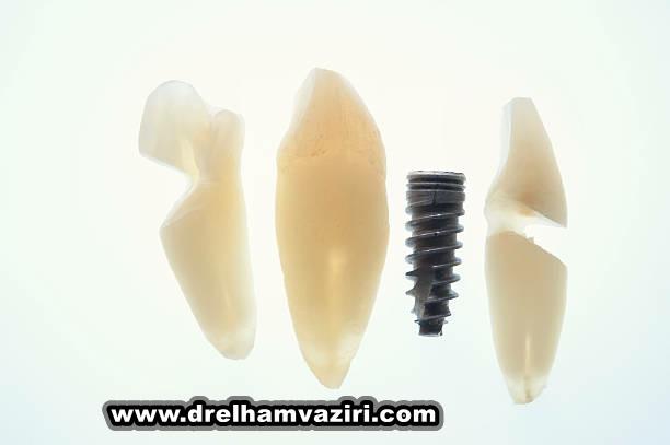 آرام بخشی برای ایمپلنت دندان