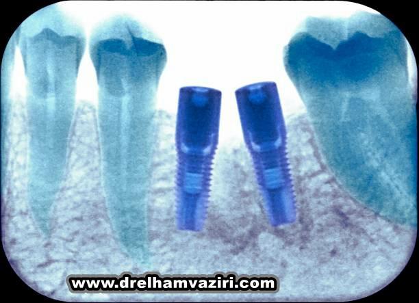 کدام نوع ایمپلنت دندان