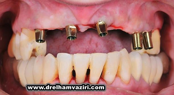 تغذیه دهان و ایمپلنت های دندان