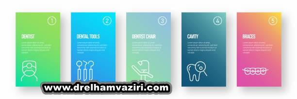 چرا ایمپلنت دندان بسیار محبوب است