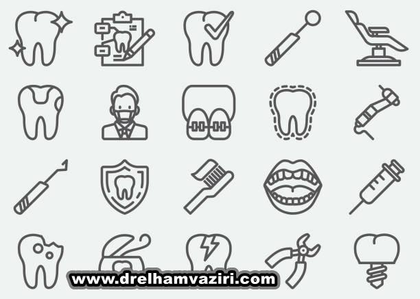 دلایل انجام ایمپلنت دندان در کلینیک دکتر وزیری