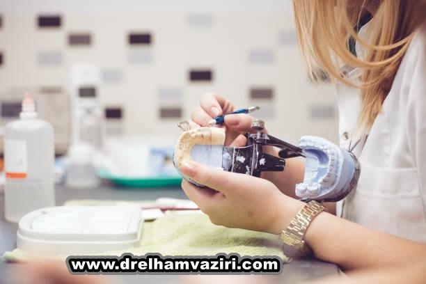 مزایای کاشت و ایمپلنت دندان