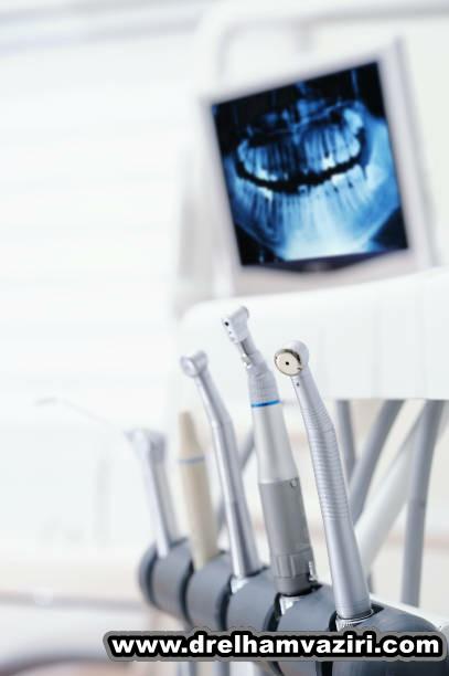 ایمپلنت دندان برای دارندگان دندان مصنوعی