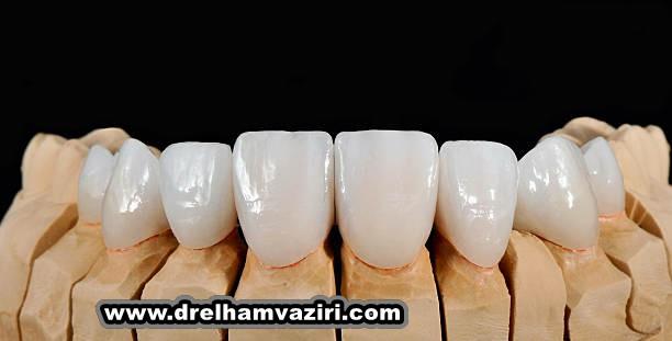 آیا دیابت می تواند ایمپلنت دندان را دشوار کند