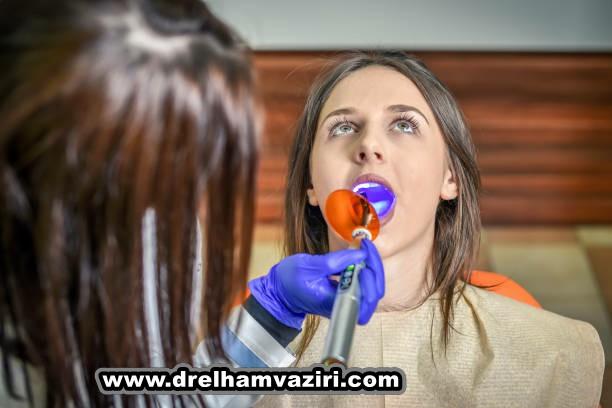 جلوگیری از گیر کردن غذا در اطراف ایمپلنت های دندانی