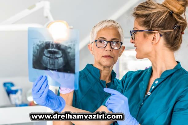 سوالات برتر شما در مورد ایمپلنت های دندان