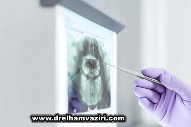 3 دلیل که چرا باید دندانهای از دست رفته را جایگزین کنید