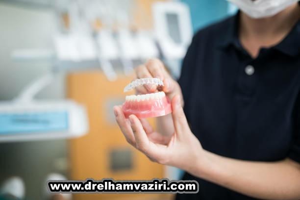 ایمپلنت دندان بهترین انتخاب برای جایگزینی دندان