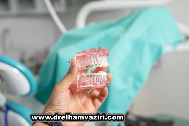 ایمپلنت دندان در کلینیک دکتر وزیری چیست؟