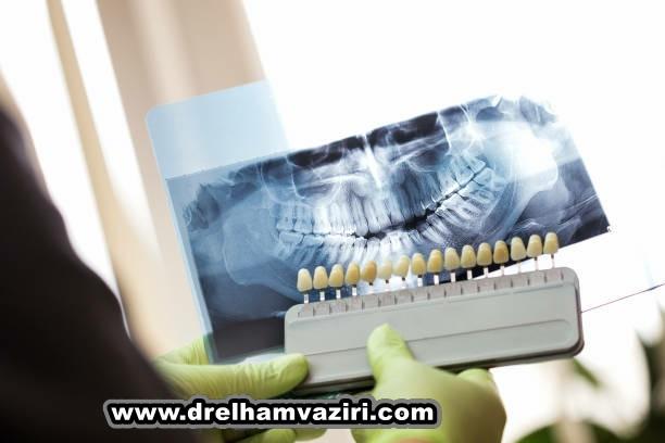 ایمپلنت دندان چگونه می تواند کیفیت زندگی را بهبود بخشد