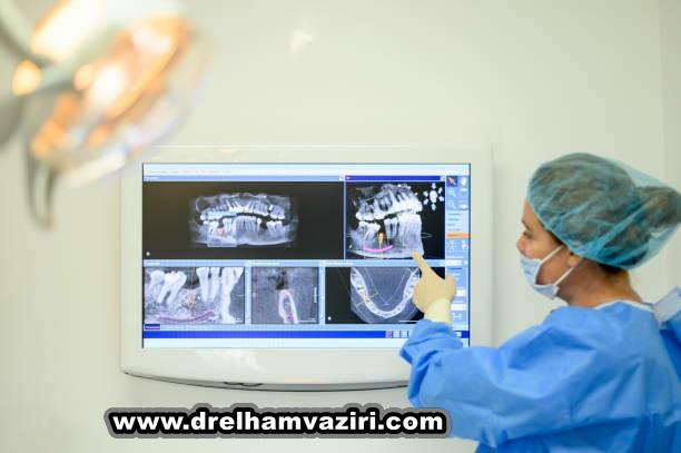 ایمپلنت های دندانی در مقابل پل های دندانی