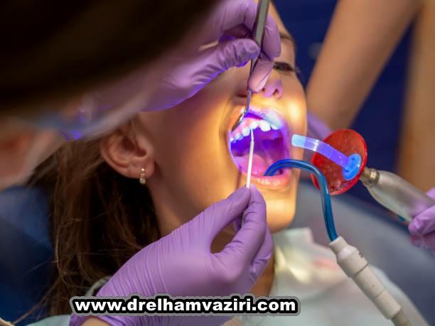 آیا دندان های ایمپلنت می توانند از دندان های طبیعی شما بهتر باشند؟
