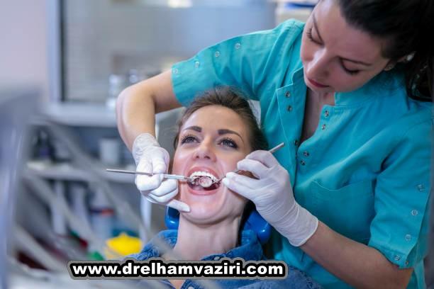 پل ایمپلنت دندان چیست